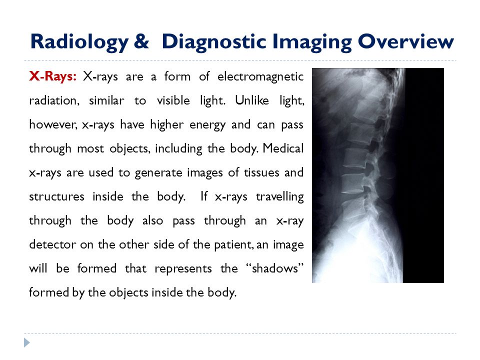 radiology medical imaging and radiologist diagnostic essay A brief overview of the specialized center of radiology and diagnostic imaging our center provides comprehensive diagnostic and treatment procedures for children and adults using radiology and various imaging methods.