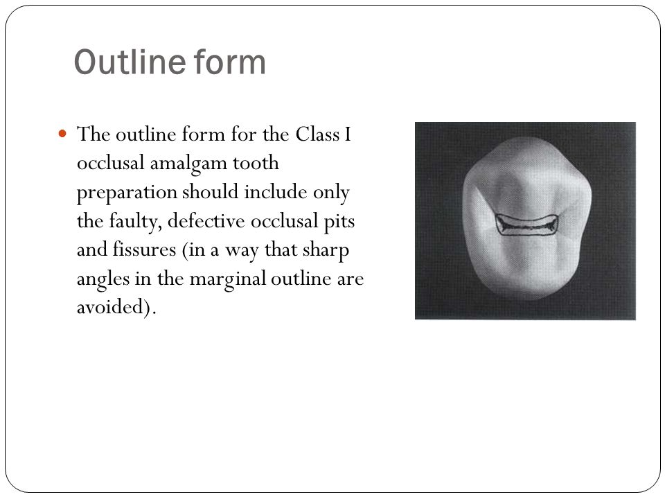 Outline form The outline form for the Class I occlusal amalgam tooth preparation should include only the faulty, defective occlusal pits and fissures (in a way that sharp angles in the marginal outline are avoided).