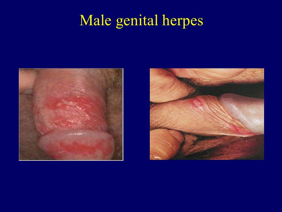 genital herpes gel