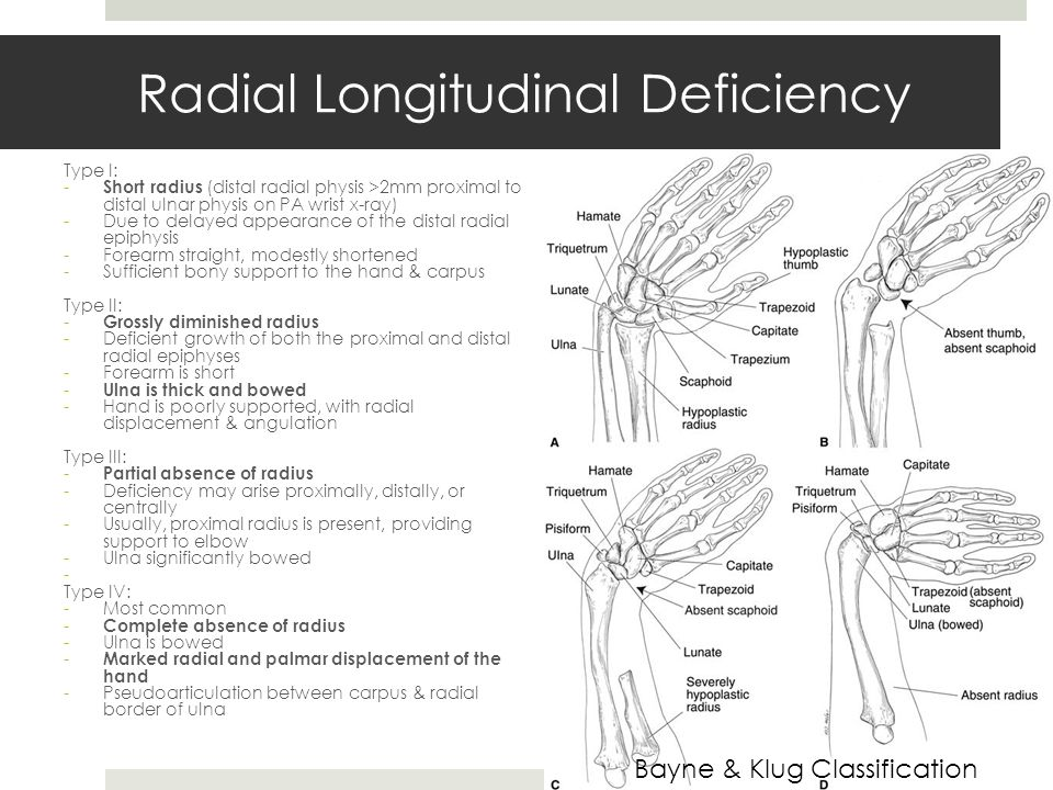 Radial Longitudinal Deficiency Type I: - Short radius (distal radial physis >2mm proximal to distal ulnar physis on PA wrist x-ray) -Due to delayed appearance of the distal radial epiphysis -Forearm straight, modestly shortened -Sufficient bony support to the hand & carpus Type II: - Grossly diminished radius -Deficient growth of both the proximal and distal radial epiphyses -Forearm is short - Ulna is thick and bowed -Hand is poorly supported, with radial displacement & angulation Type III: - Partial absence of radius -Deficiency may arise proximally, distally, or centrally -Usually, proximal radius is present, providing support to elbow -Ulna significantly bowed - Type IV: -Most common - Complete absence of radius -Ulna is bowed - Marked radial and palmar displacement of the hand -Pseudoarticulation between carpus & radial border of ulna Bayne & Klug Classification