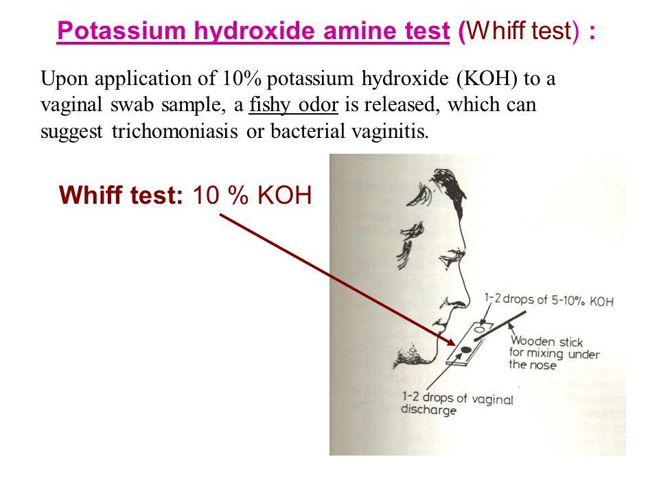 Candidiasis Hani Masaadeh, MD, Ph.D. u I. FUNGI (Mycology) u ...