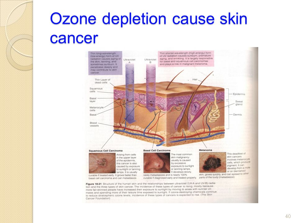 Ozone depletion cause skin cancer 40