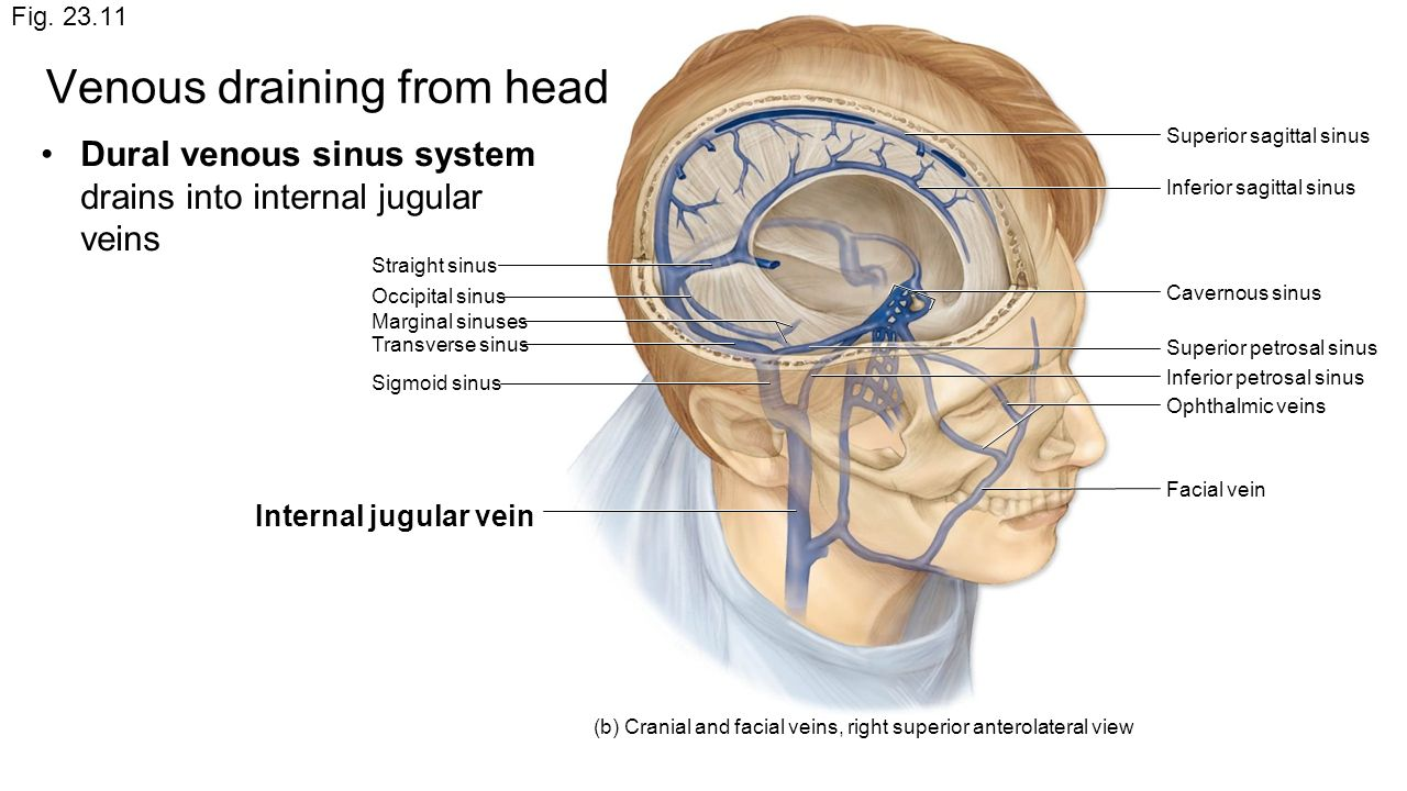 Enchanting Sigmoid Sinus Anatomy Image - Human Anatomy Images ...