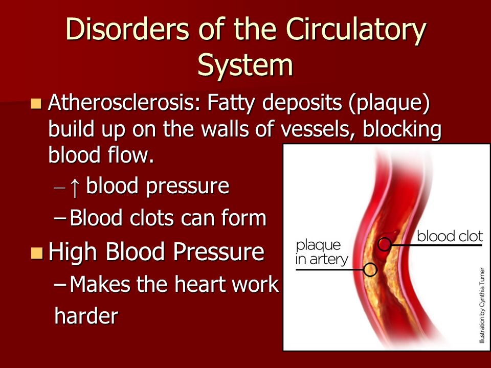 Disorders of the Circulatory System Atherosclerosis: Fatty deposits (plaque) build up on the walls of vessels, blocking blood flow.