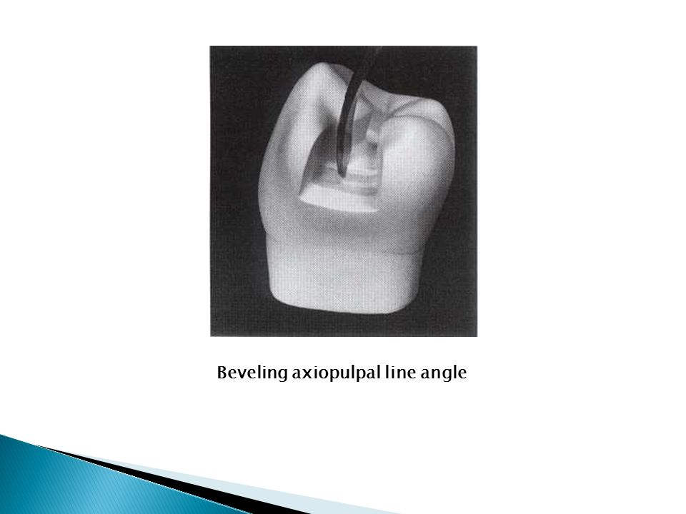 Beveling axiopulpal line angle