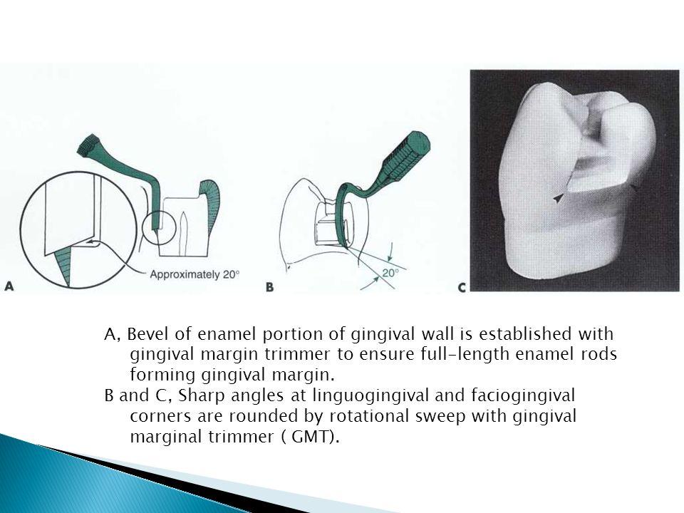 A, Bevel of enamel portion of gingival wall is established with gingival margin trimmer to ensure full-length enamel rods forming gingival margin.