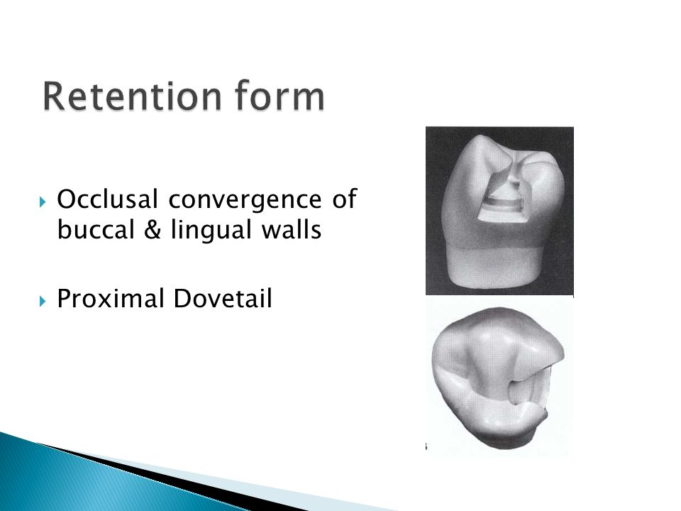  Occlusal convergence of buccal & lingual walls  Proximal Dovetail