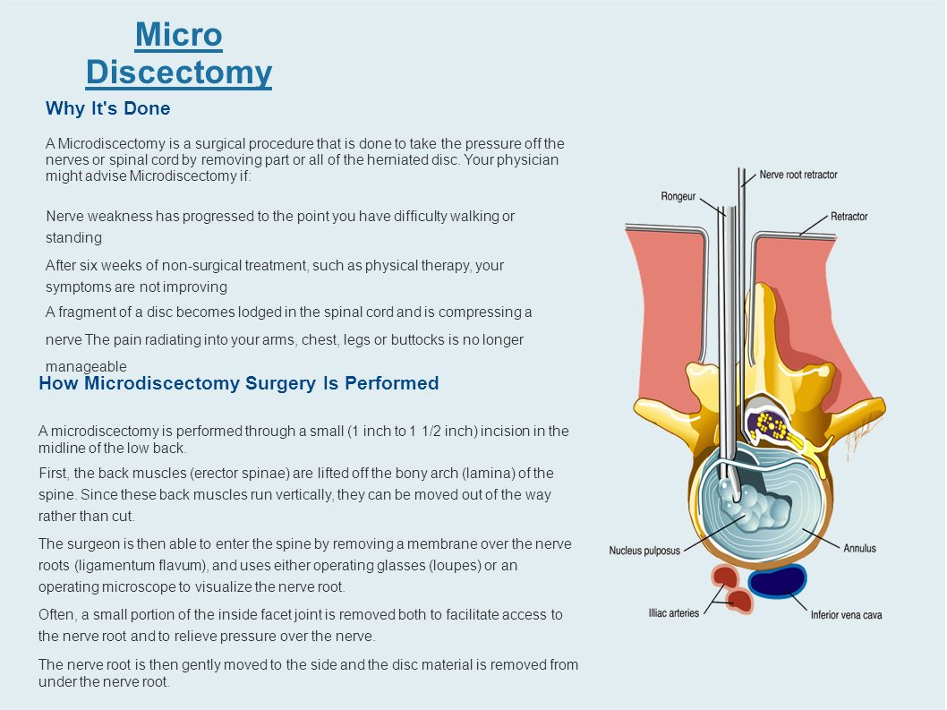 Herniated disc physical therapy - 4 Micro Discectomy