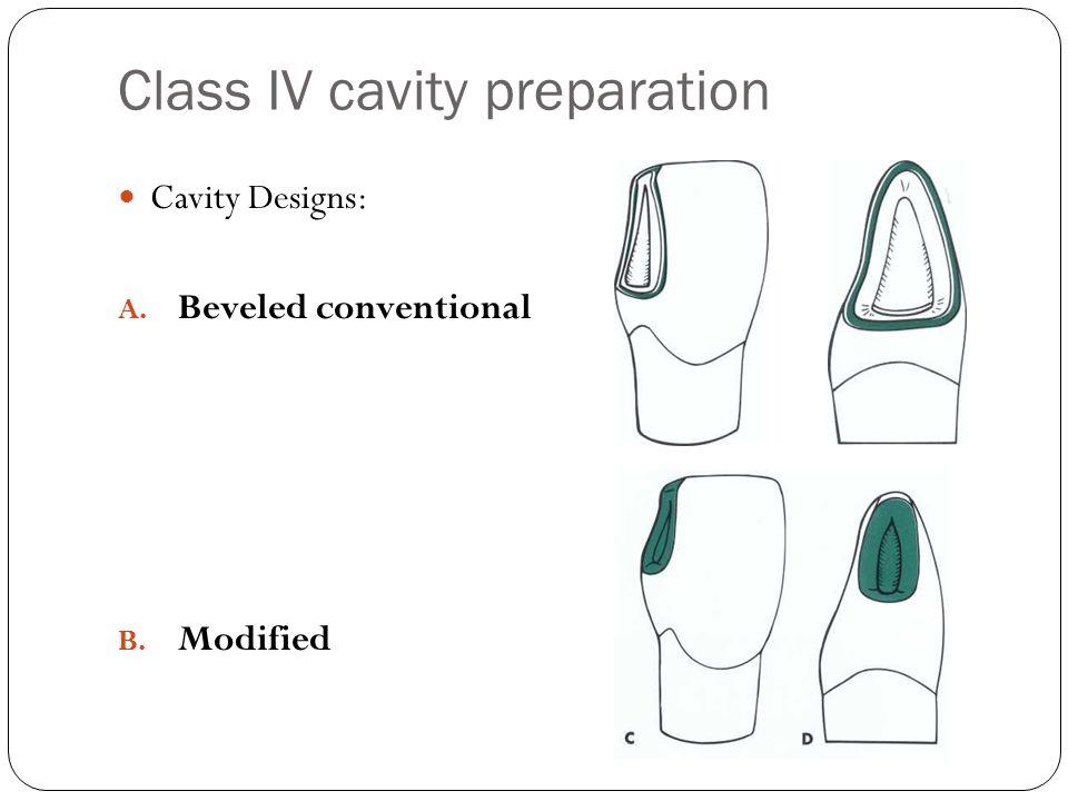 Class IV cavity preparation Cavity Designs: A. Beveled conventional B. Modified