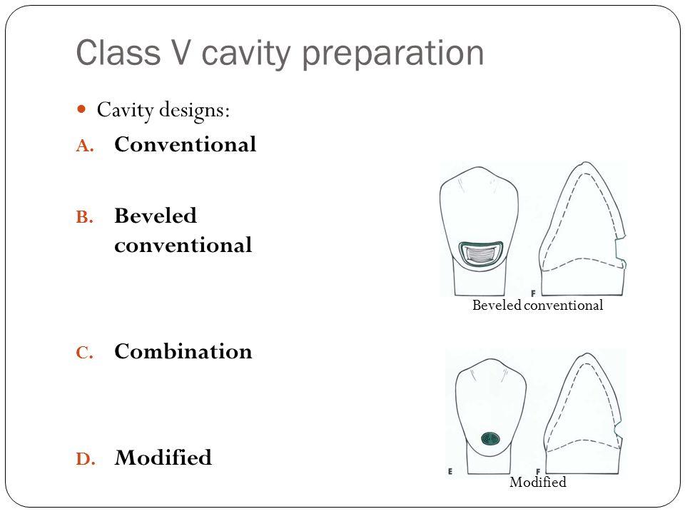 Class V cavity preparation Cavity designs: A.Conventional B.