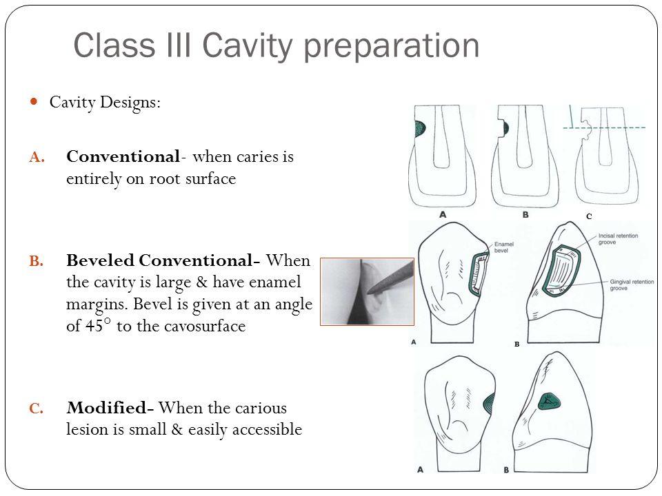 Class III Cavity preparation Cavity Designs: A.