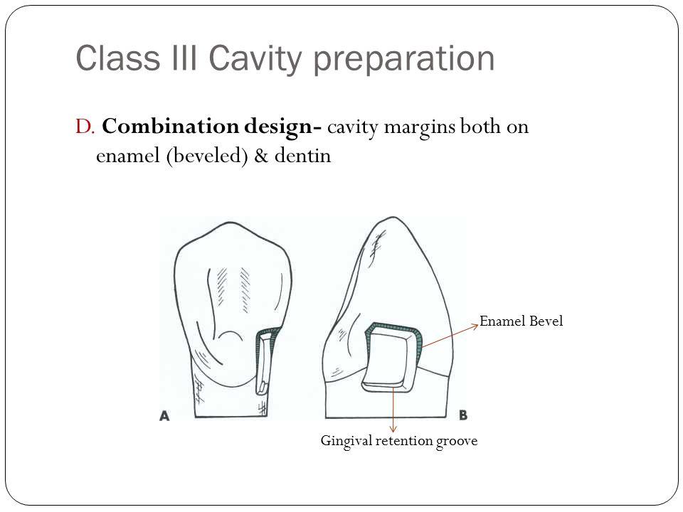 Class III Cavity preparation D.