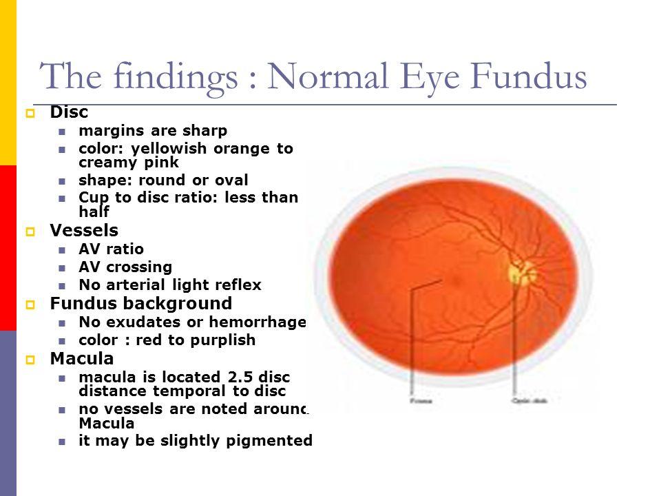 Perfect Fundus Of Eye Anatomy Pictures - Anatomy Ideas - yunoki.info
