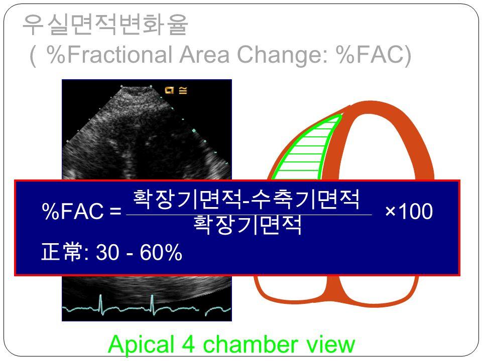 fractional area change