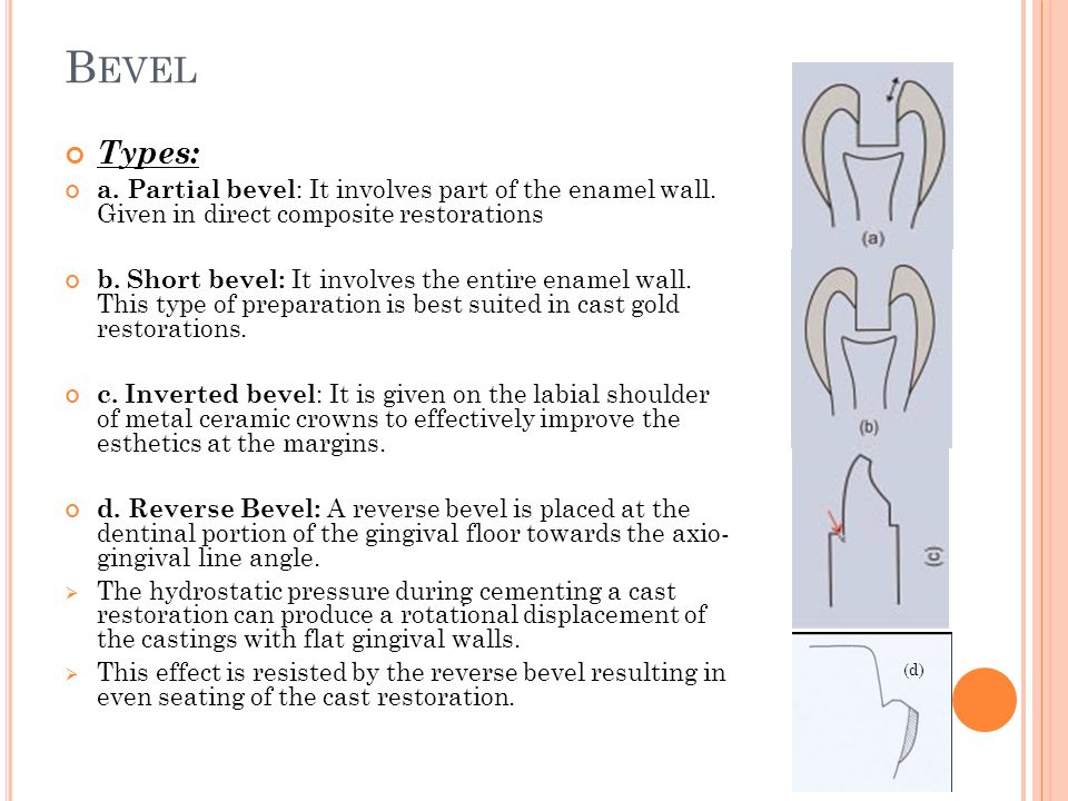 B EVEL Types: a.Partial bevel : It involves part of the enamel wall.