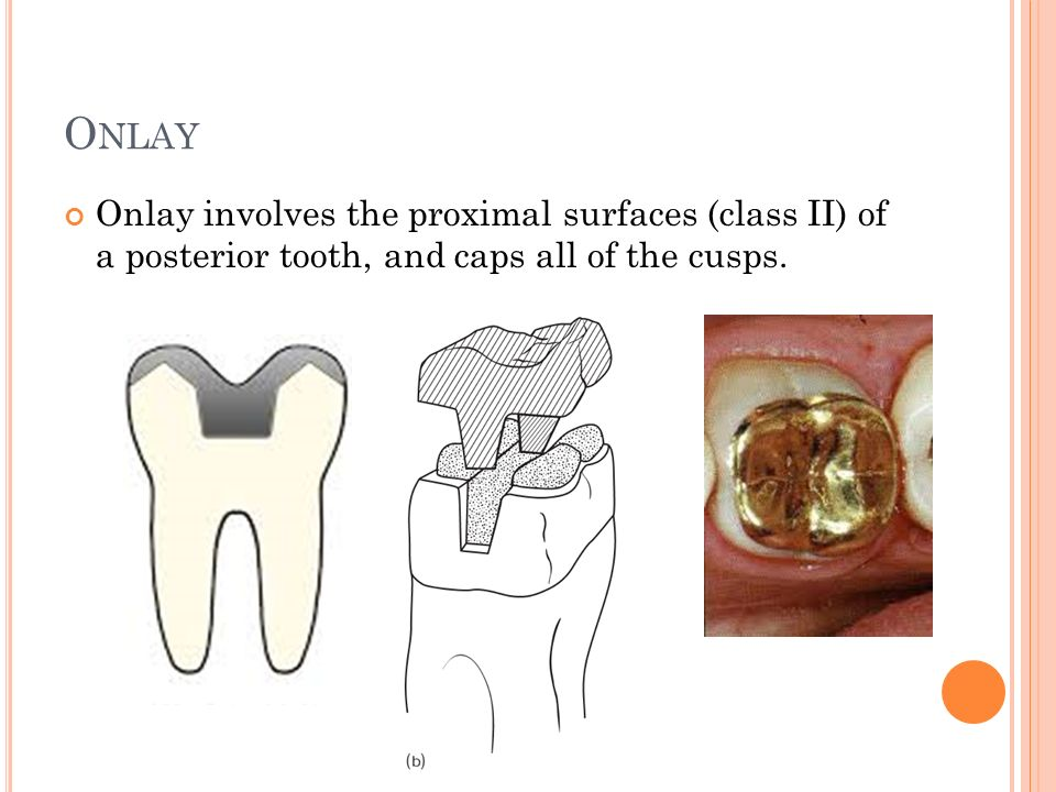 O NLAY Onlay involves the proximal surfaces (class II) of a posterior tooth, and caps all of the cusps.