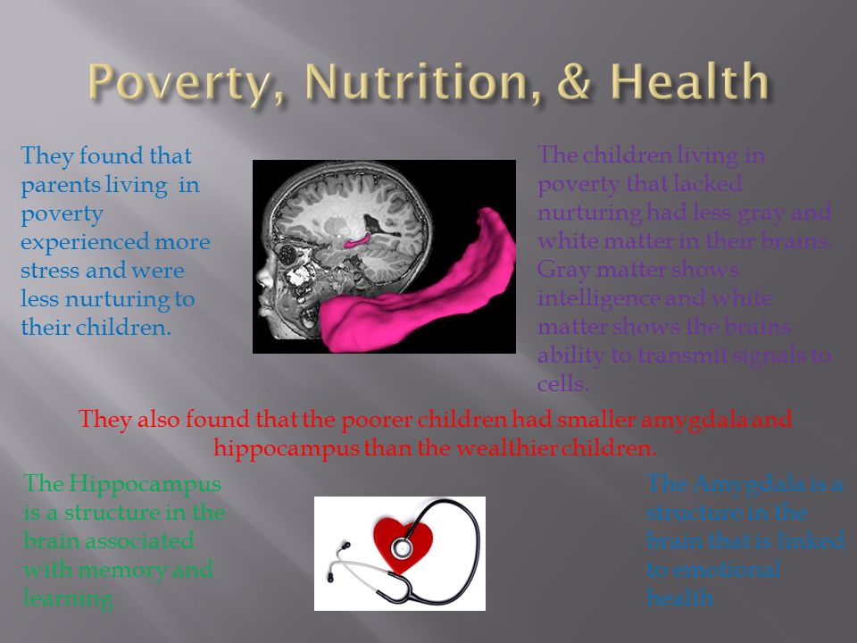 Poverty Linked To Brain Structure In >> Poverty Nutrition Health Education Of Parents Economic