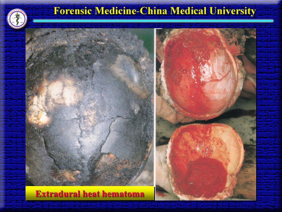 Extradural heat hematoma