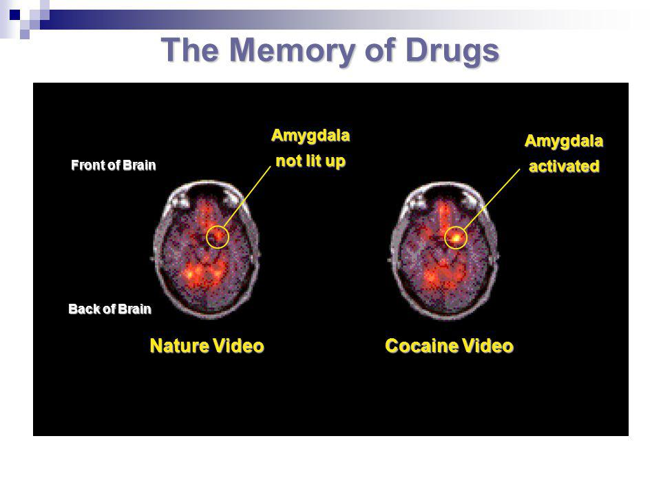 The Memory of Drugs Nature Video Cocaine Video Front of Brain Back of Brain Amygdala not lit up Amygdala activated