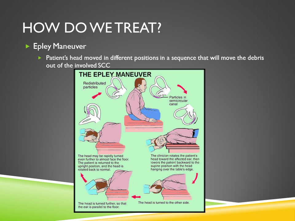 HOW DO WE TREAT? Epley Maneuver Patients head moved in different positions in a sequence that will move the debris out of the involved SCC