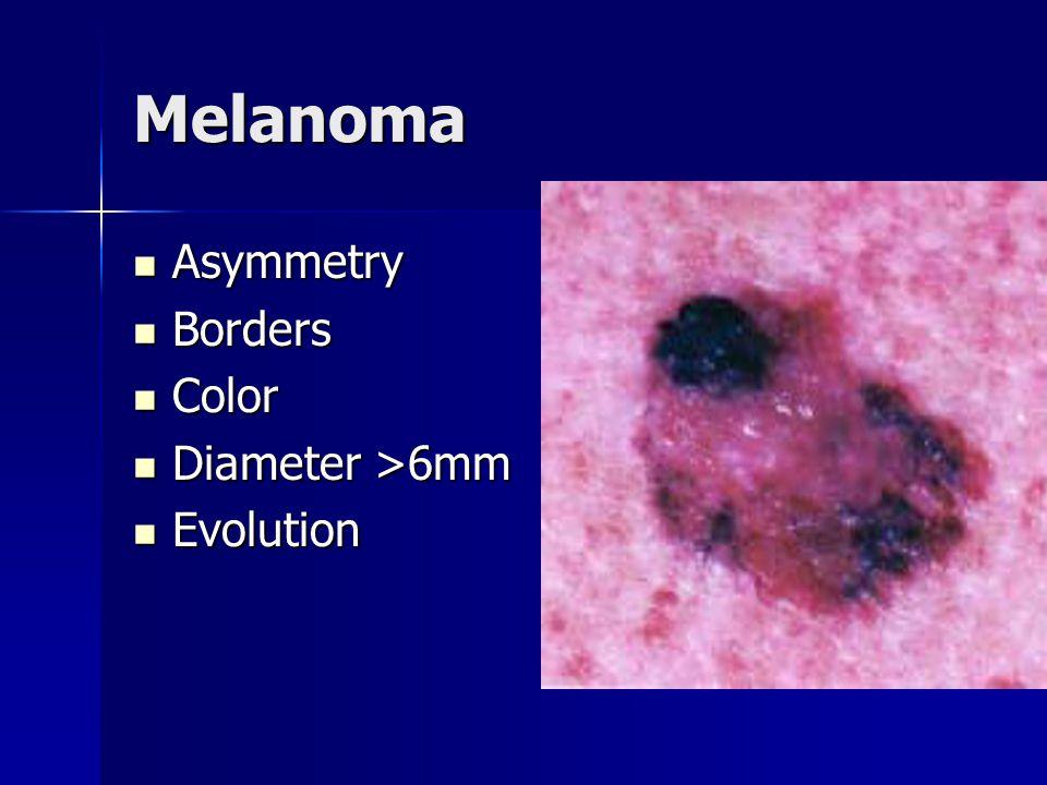 Melanoma Asymmetry Asymmetry Borders Borders Color Color Diameter >6mm Diameter >6mm Evolution Evolution
