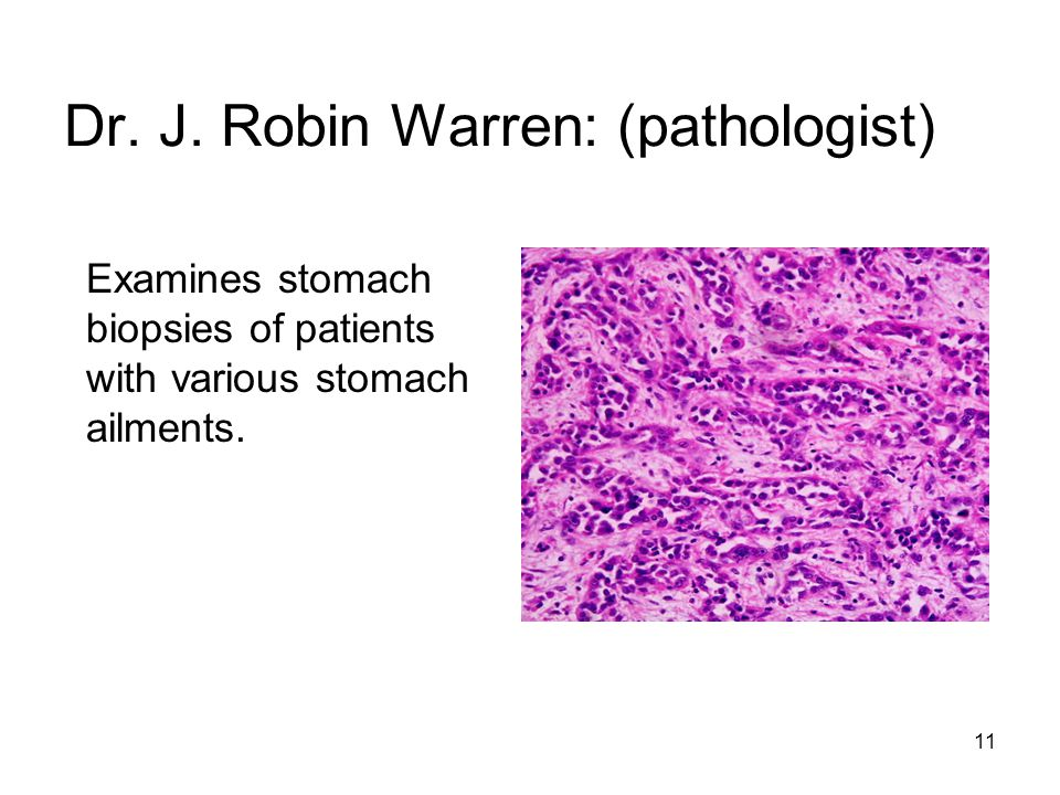 11 Dr. J. Robin Warren: (pathologist) Examines stomach biopsies of patients with various stomach ailments.