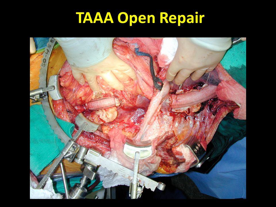 TAAA Open Repair
