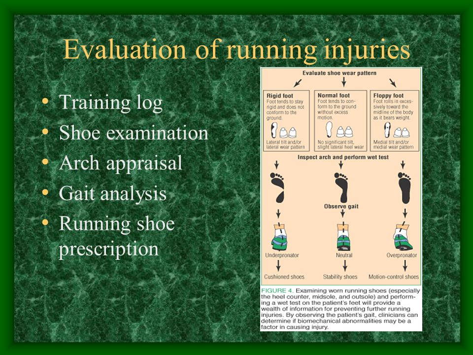 Evaluation of running injuries Training log Shoe examination Arch appraisal Gait analysis Running shoe prescription