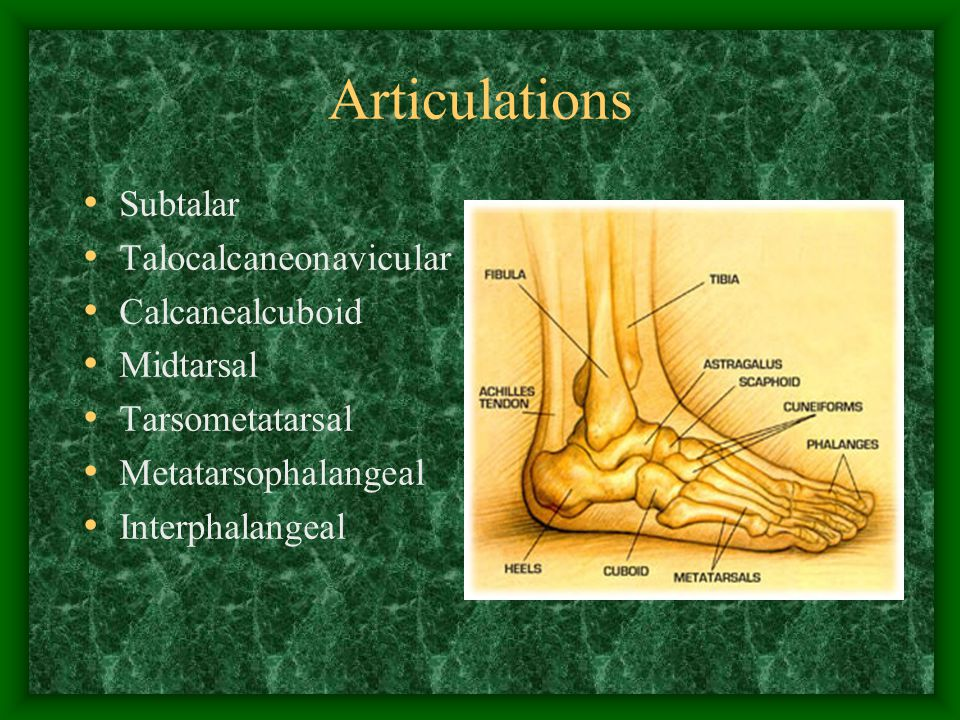 Overpronators Patellofemoral pain Popliteal tendonitis Posterior tibial tendonitis Achilles tendonitis Plantar fasciitis Metatarsal stress fracture