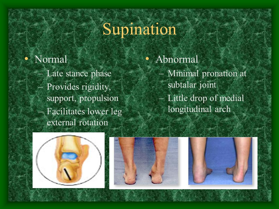 Supination Normal –Late stance phase –Provides rigidity, support, propulsion –Facilitates lower leg external rotation Abnormal –Minimal pronation at s