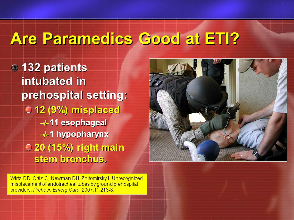 Are Paramedics Good at ETI? 132 patients intubated in prehospital setting: 12 (9%) misplaced 11 esophageal 1 hypopharynx 20 (15%) right main stem bron