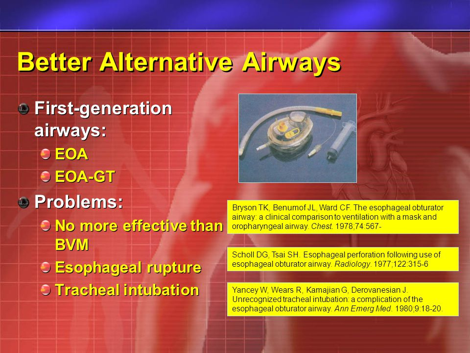 Better Alternative Airways First-generation airways: EOA EOA-GT Problems: No more effective than BVM Esophageal rupture Tracheal intubation First-gene