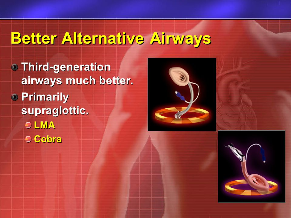 Better Alternative Airways Third-generation airways much better. Primarily supraglottic. LMA Cobra Third-generation airways much better. Primarily sup