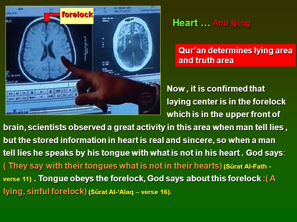 Now, it is confirmed that Now, it is confirmed that laying center is in the forelock laying center is in the forelock which is in the upper front of b