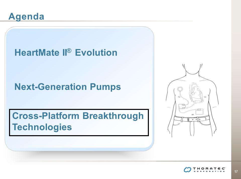 17 Agenda Next-Generation Pumps Cross-Platform Breakthrough Technologies HeartMate II ® Evolution