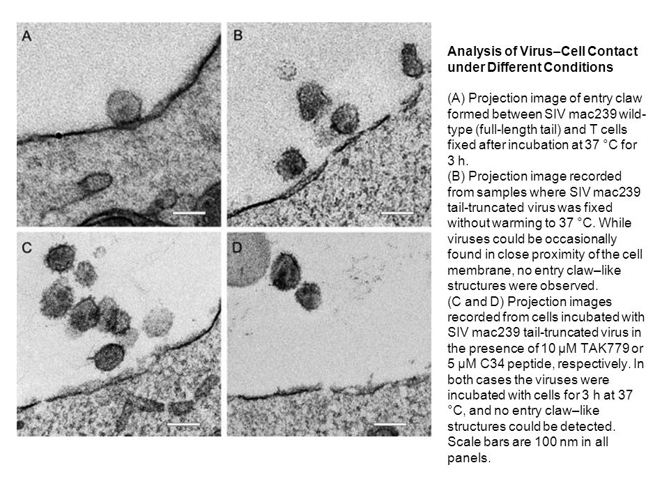 Imaging of HIV-1 in Contact with T Cells (A–D) Four slices at different depths in a tomogram of the contact between HIV-1 and T cells, with cells fixed following incubation for 1 h at 37 °C.