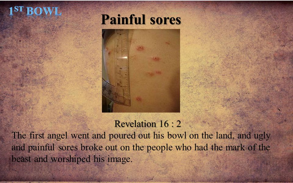 Painful sores Revelation 16 : 2 The first angel went and poured out his bowl on the land, and ugly and painful sores broke out on the people who had t