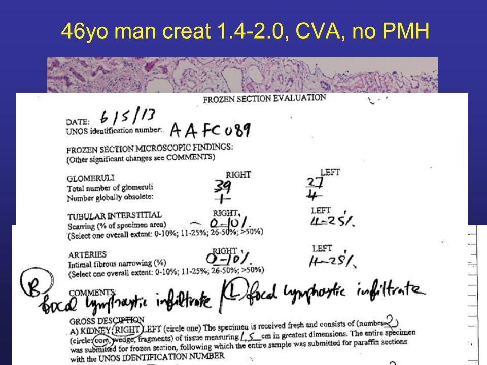 46yo man creat 1.4-2.0, CVA, no PMH
