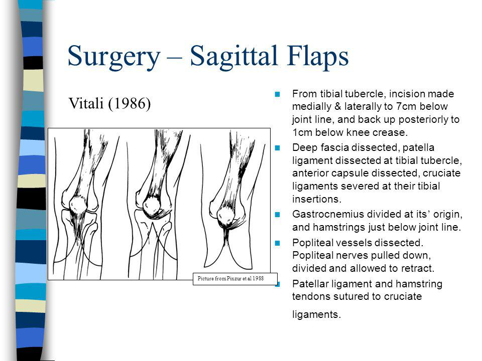 Surgery – Sagittal Flaps From tibial tubercle, incision made medially & laterally to 7cm below joint line, and back up posteriorly to 1cm below knee c