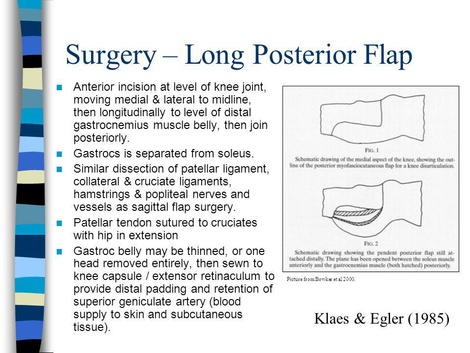 Surgery – Long Posterior Flap Anterior incision at level of knee joint, moving medial & lateral to midline, then longitudinally to level of distal gas