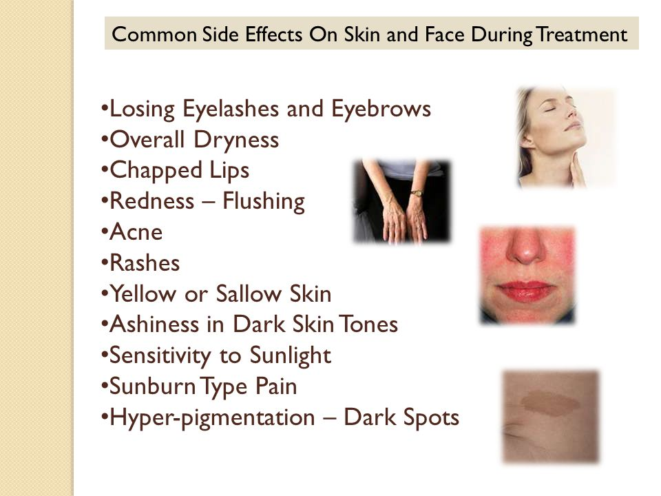 Common Side Effects On Skin and Face During Treatment Losing Eyelashes and Eyebrows Overall Dryness Chapped Lips Redness – Flushing Acne Rashes Yellow or Sallow Skin Ashiness in Dark Skin Tones Sensitivity to Sunlight Sunburn Type Pain Hyper-pigmentation – Dark Spots