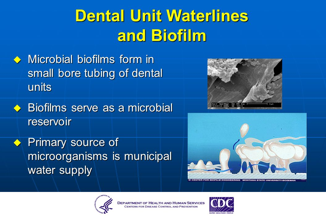 Dental Unit Waterlines and Biofilm Microbial biofilms form in small bore tubing of dental units Microbial biofilms form in small bore tubing of dental