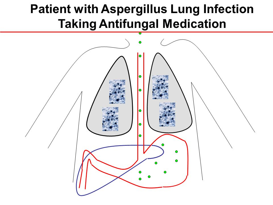 Patient with Aspergillus Lung Infection Taking Antifungal Medication