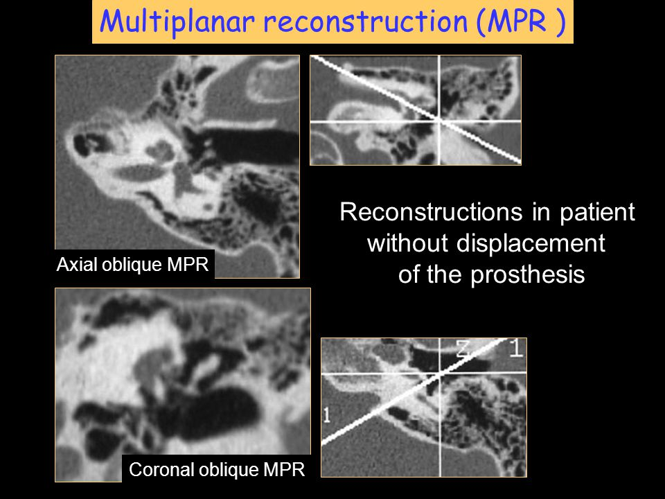 Multiplanar reconstruction (MPR ) Axial oblique MPR Coronal oblique MPR Reconstructions in patient without displacement of the prosthesis