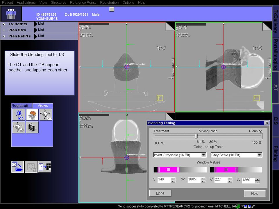 - Slide the blending tool to 1/3. The CT and the CB appear together overlapping each other.