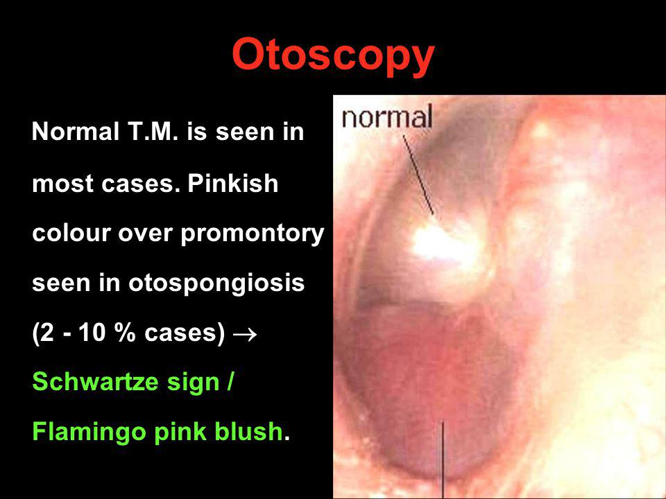 Otoscopy Normal T.M. is seen in most cases. Pinkish colour over promontory seen in otospongiosis (2 - 10 % cases) Schwartze sign / Flamingo pink blush