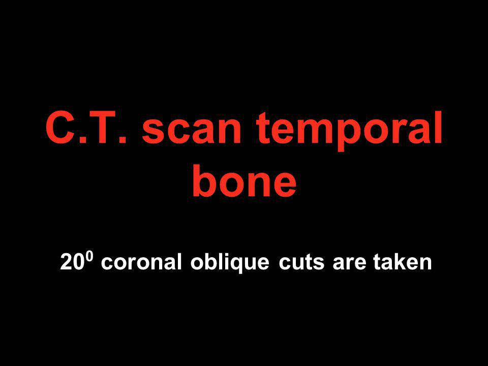 C.T. scan temporal bone 20 0 coronal oblique cuts are taken