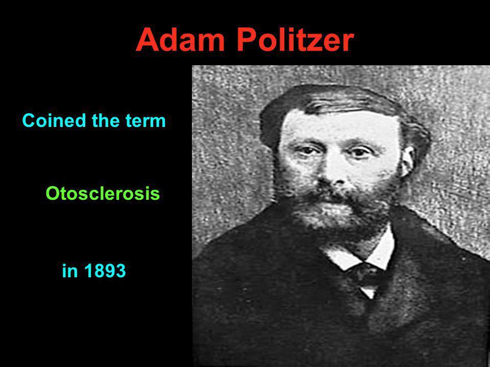 Friedrich Siebenmann Coined the term Otospongiosis in 1912