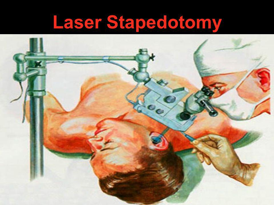 Laser Stapedotomy