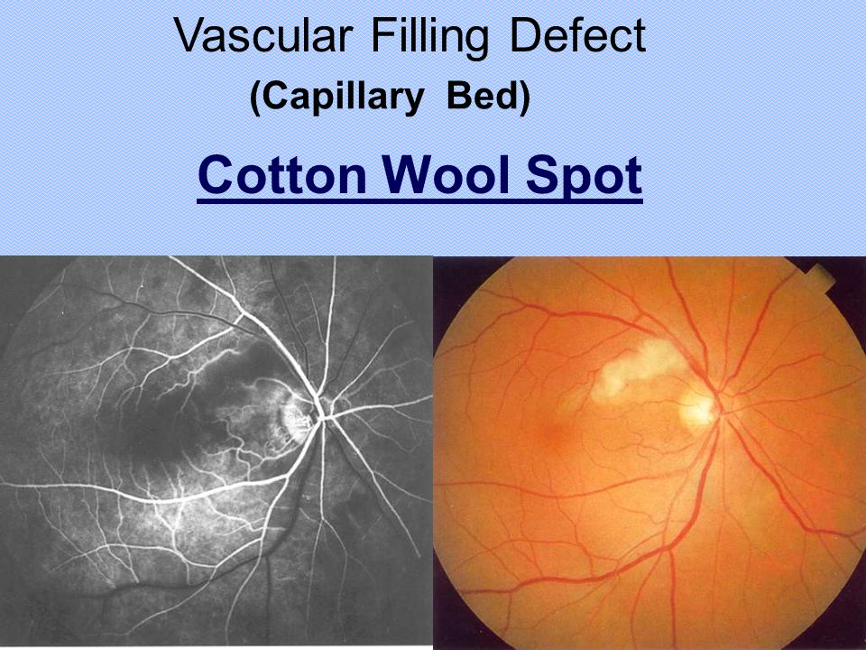 Cotton Wool Spot Vascular Filling Defect (Capillary Bed)